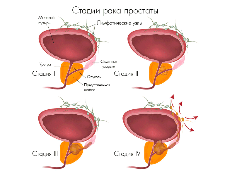 Аденокарцинома рак простаты