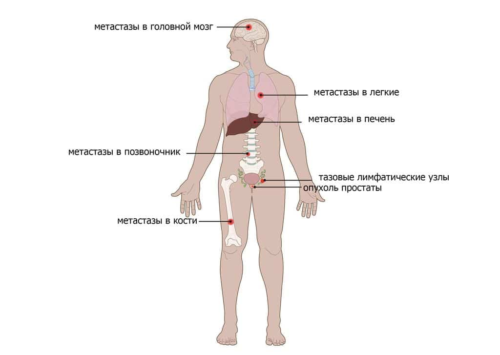 рак простаты лечение метастазов
