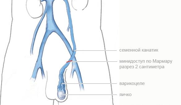 Операция Мармара при варикоцеле изображение