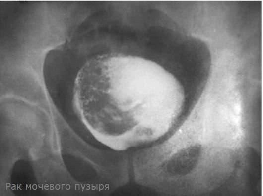 Онкология мочевого пузыря